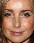 Louise Redknapp's Lips